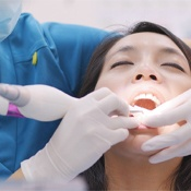 A woman having her teeth cleaned