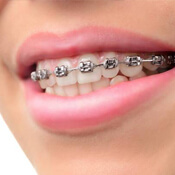 smile with braces