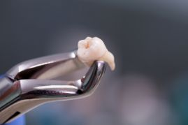 A dentist holding up an extracted tooth