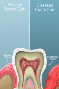 healthy gums versus gum disease