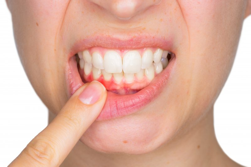 Woman with gingivitis